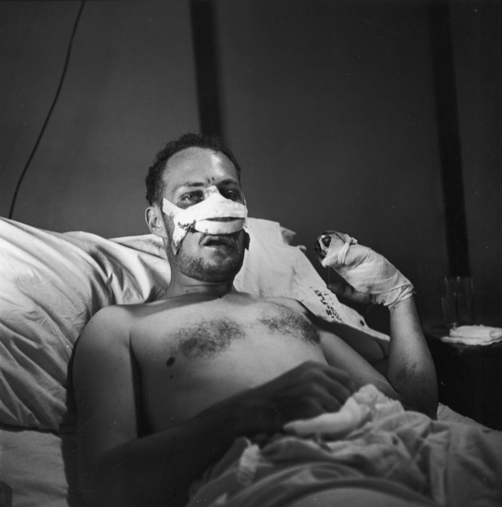W. Eugene Smith, wounded by mortar fire while covering the action on Okinawa, recovering in a Guam field hospital. (Photo by W. Eugene Smith/The LIFE Picture Collection © Meredith Corporation)