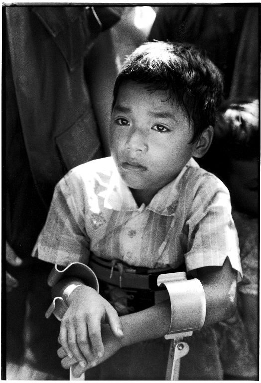 Paraplegic Lau Nguyen, 10, Vietnam, 1970. (Photo by Larry Burrows/The LIFE Picture Collection © Meredith Corporation)