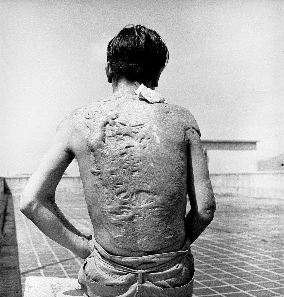 A Japanese Survivors of the United States' August 1945 atomic attack on Hiroshima displays his horribly scarred back two years later, 1947.