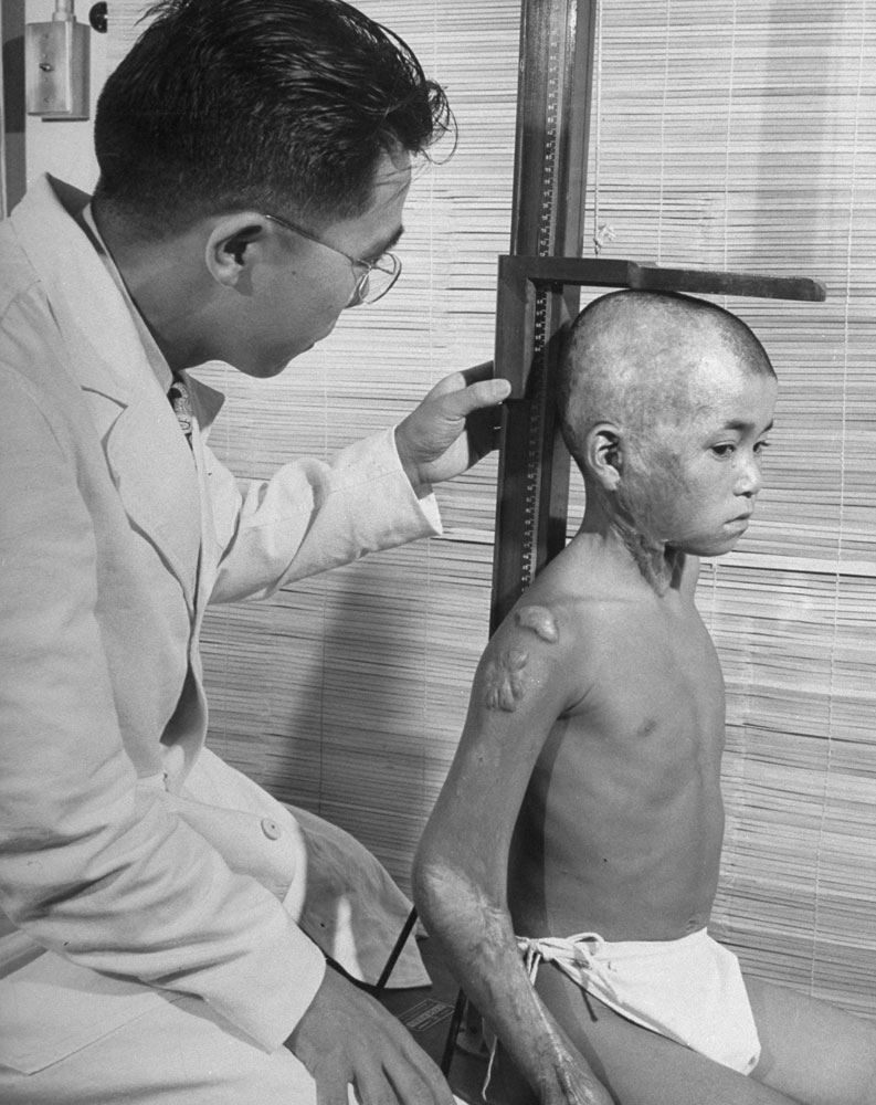 Flash-burned boy is measured by pediatrician. Growth of such children is checked regularly. Hiroshima, 1949.