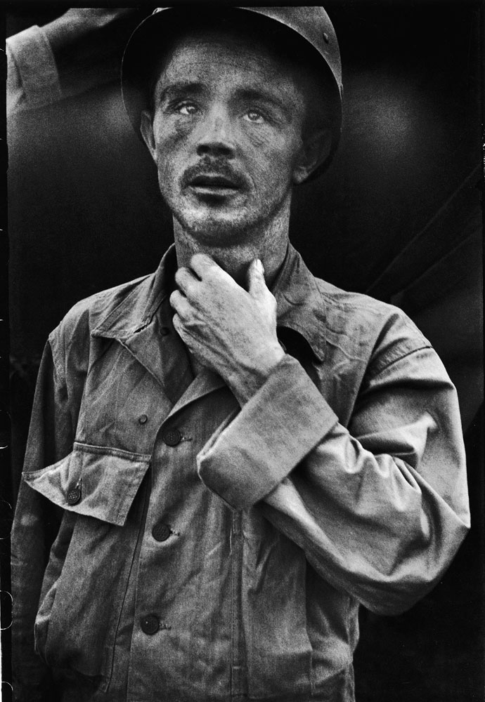 Dazed U.S. Army Corporal Roy Day Jr., photographed after surviving a massacre by North Korean troops of 26 of his American fellow-prisoners. Day played dead after all of the prisoners were shot and left on a hillside in Korean, 1950.