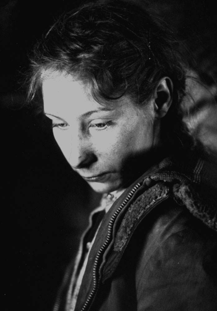 Appalachia's young people, like Roberta Oliver, 14, from Rock House Creek, Ky., are often sad-faced and prematurely aged. Most suffer fatigue because of a diet of surplus food, heavy in starches like flour and rice and inadequately augmented by lard and cheese, butter and ground pork.